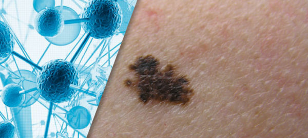 Non-Invasive Gene Expression Testing to Rule Out Melanoma