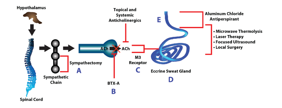 Proposed pathway of sweat production and sites of therapeutic intervention