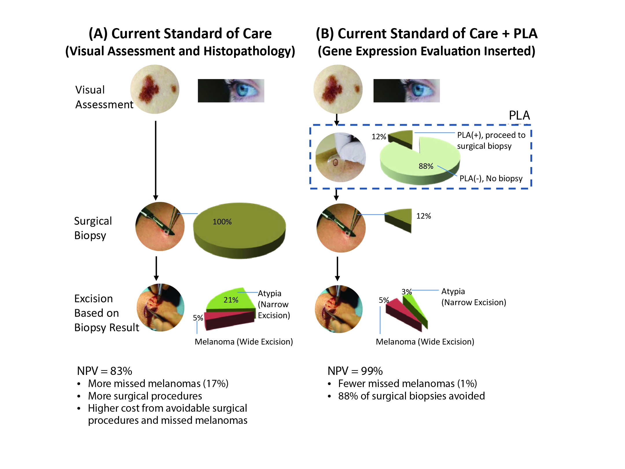 Ruling out Melanoma: A Practical Guide to Improving Performance Through Non-Invasive Gene Expression Testing (Family Practice) - image