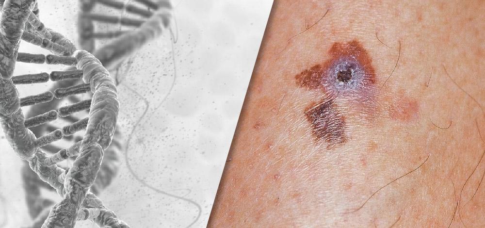 Melanoma Gene Expression Testing