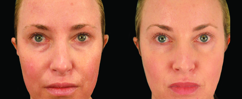 Before and after of facial skin texture and color.