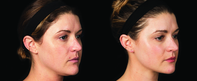 Before and after image of full facial rejuvenation