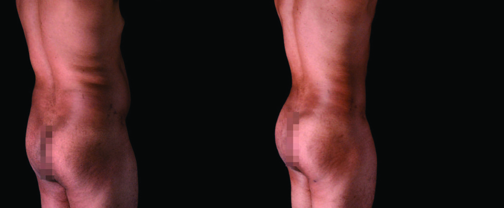 Before and after Image of male buttock augmentation