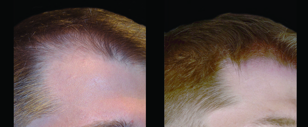 Before and after close up of male hairline from PRP/ACell injections