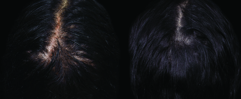 Before and after close up hair growth from PRP/ACell injections