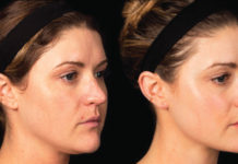 A Physician S Guide To Treating Acne