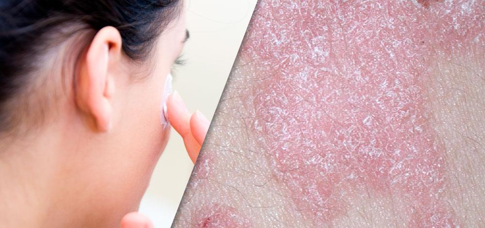 Dermatologic Uses of Methotrexate image