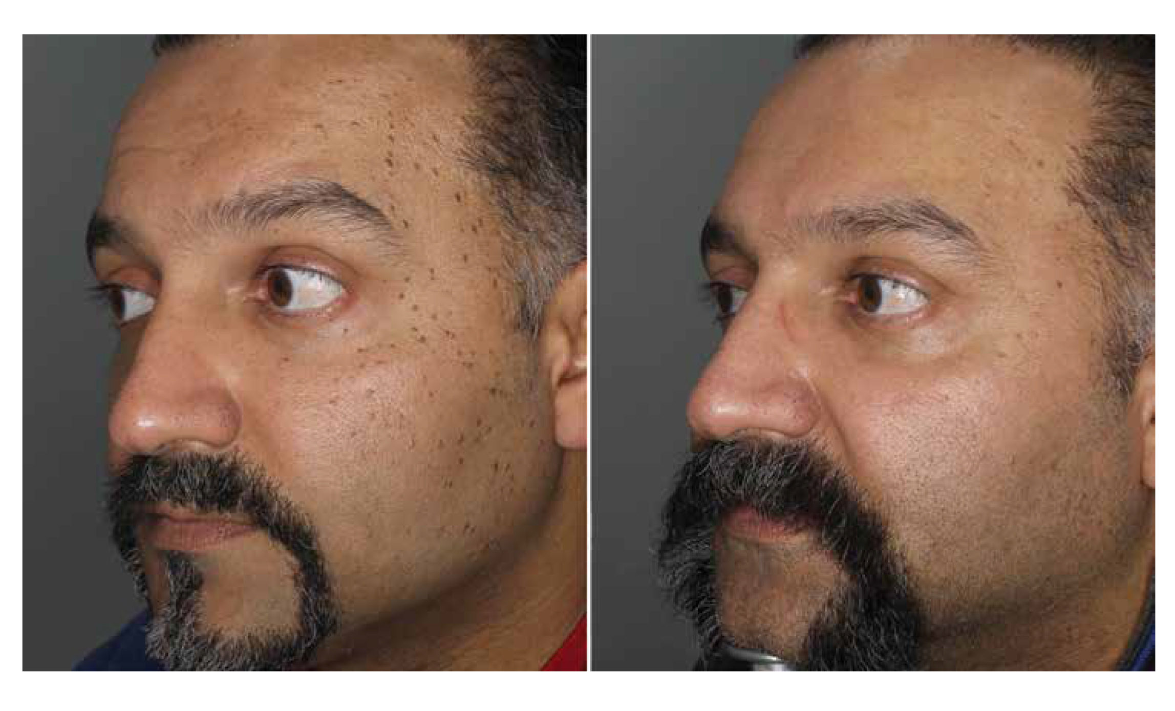 Patient of South Asian descent pictured before and 8 weeks after one treatment session with a long-pulse 532-nm laser