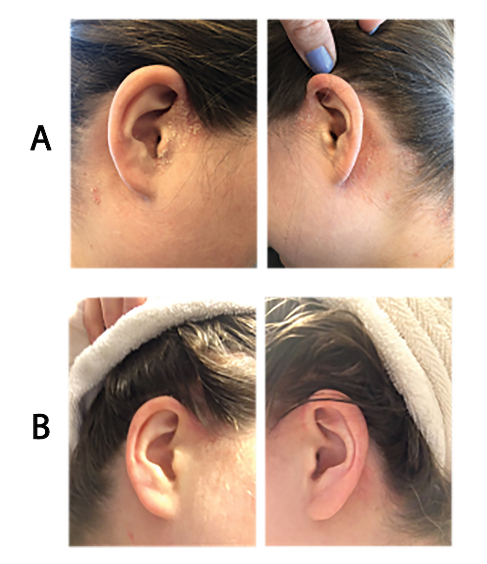 Psoriasis on the ears and scalp before and after treatment with calcipotriol-betamethasone aerosol foam