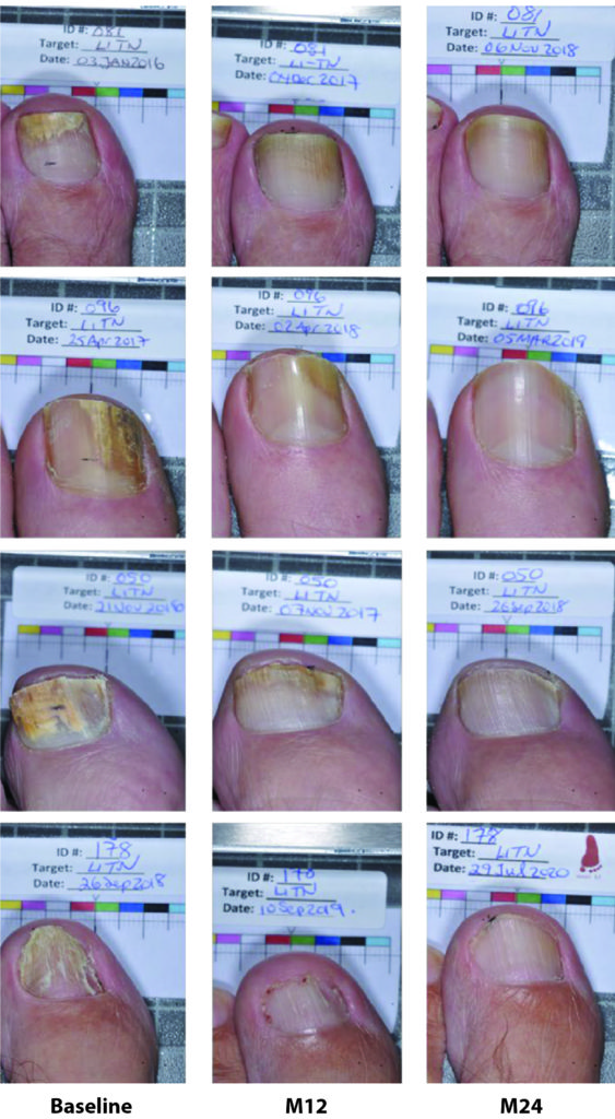 Set of photos from 4 patients, showing the progress of toenail treatment