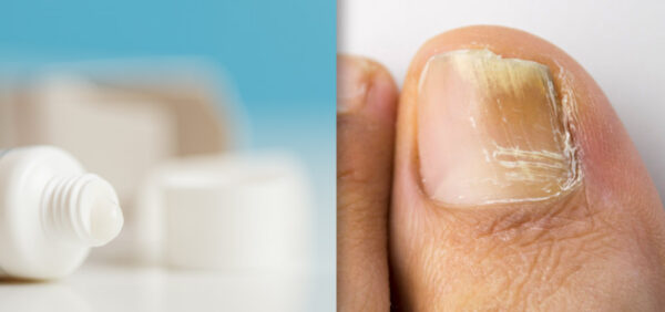 image of infected toenail