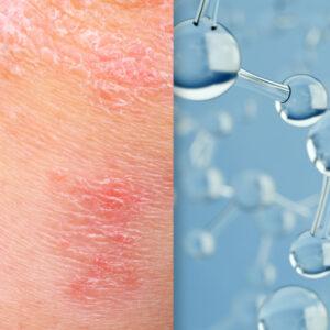 Bimekizumab and Psoriasis and science image collage