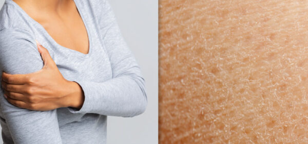 Image collage of woman with itchy skin and skin closeup
